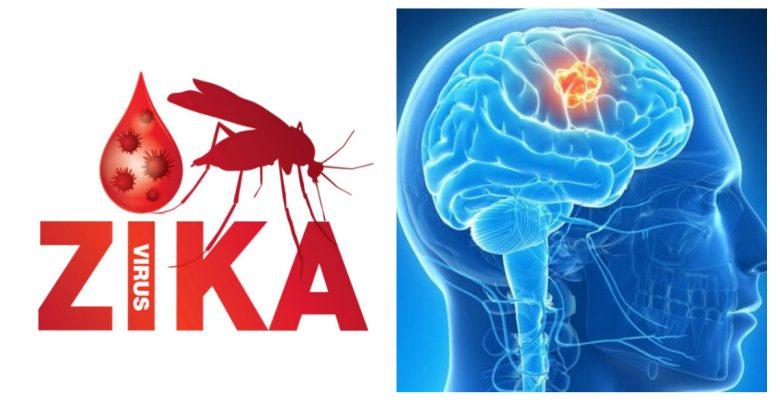 El virus del Zika podría ser la cura para los tumores cerebrales