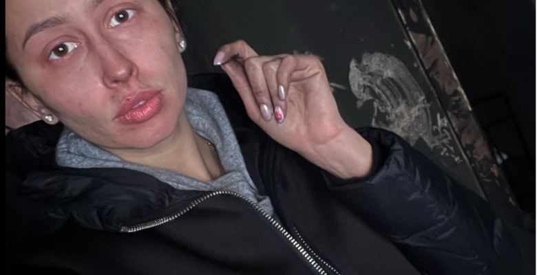 Gimnasta pierde su casa en incendio; no olió el humo porque tenía covid