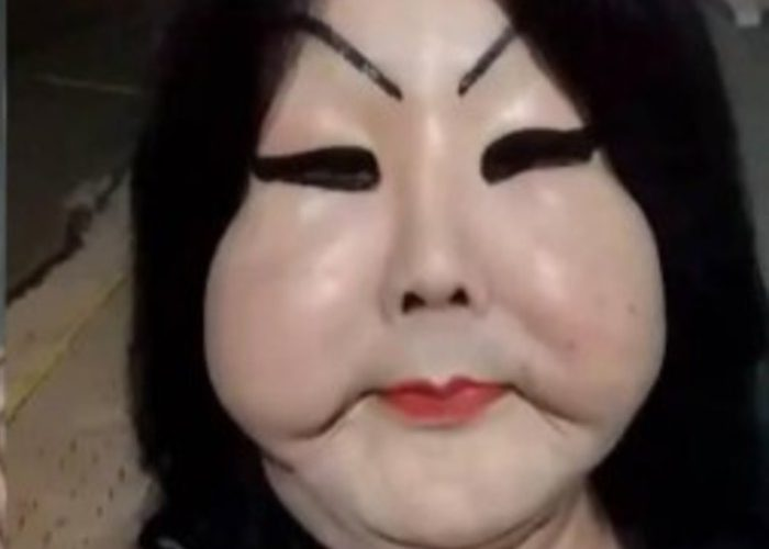 Mujer trans se inyectó silicona industrial y le deformó la cara